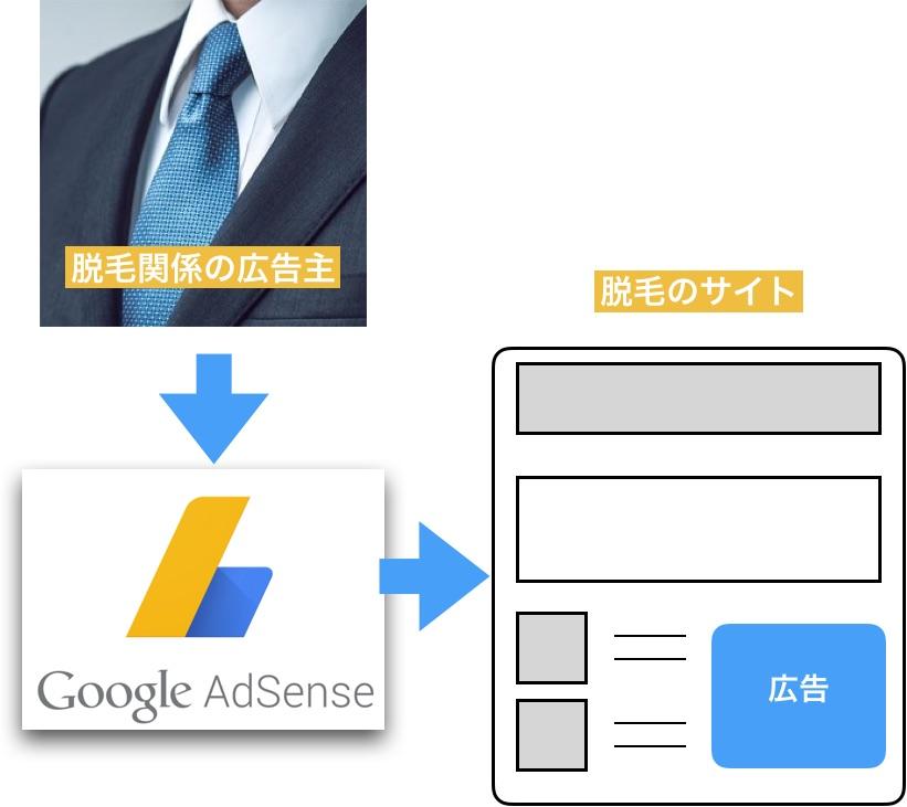 脱毛関係サイトの場合Googleアドセンス